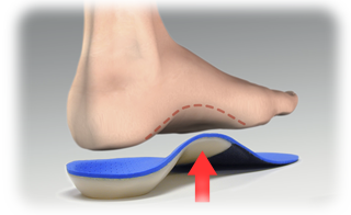 footOverOrthotic_withLine.png